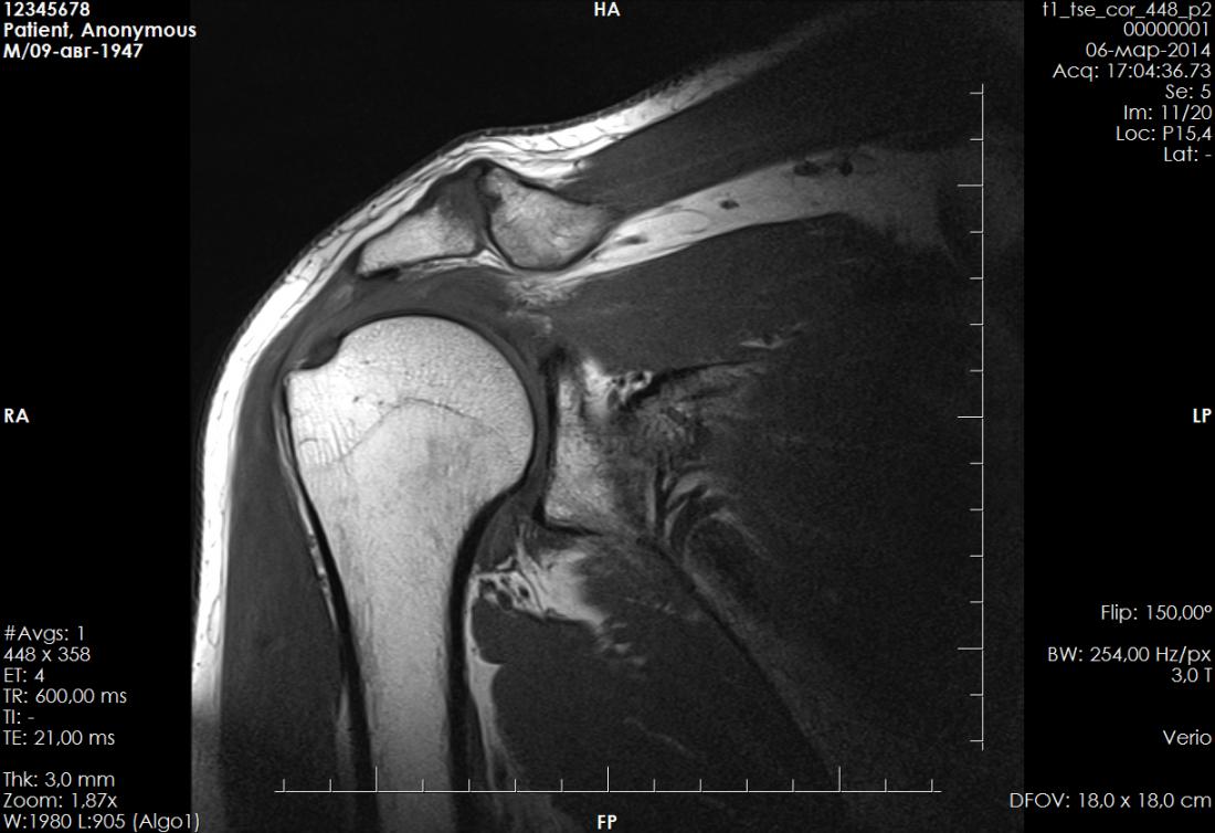 видеолекция плечевой сустав