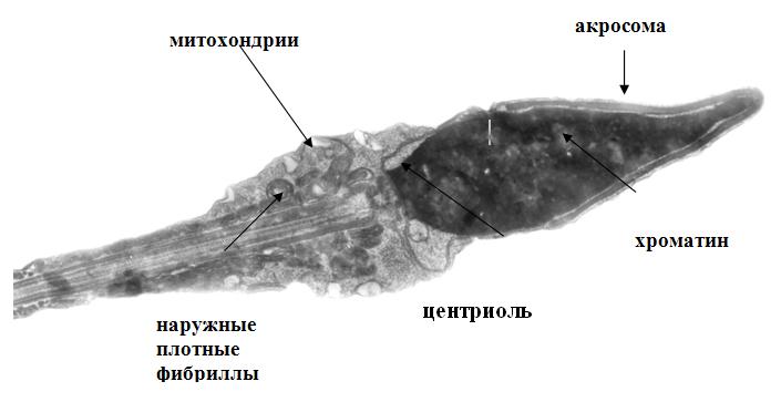 mikroskopicheskoe-issledovanie-spermatozoidov