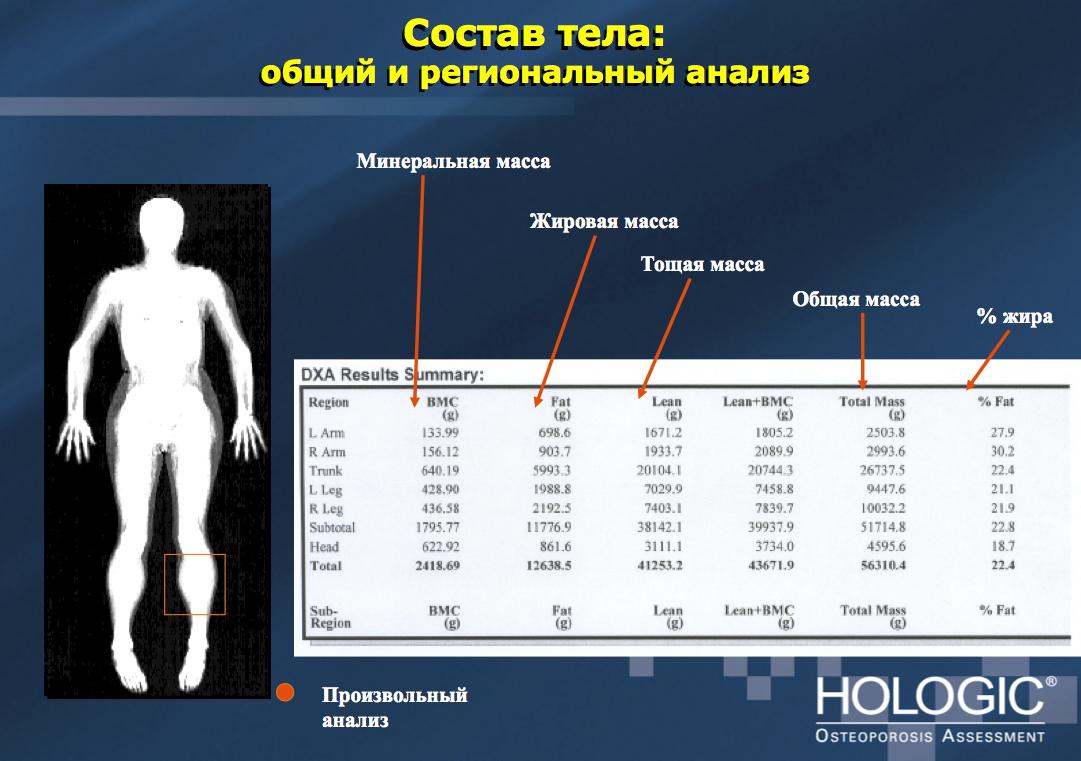 Денситометрия на аппарате HOLOGIC