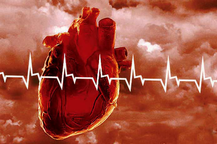 болезнь клапанов сердца