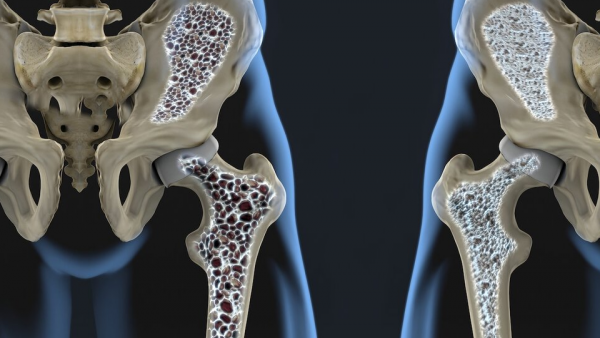 Как лечат остеопороз